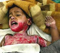 Photo of child, badly injured by military incursion